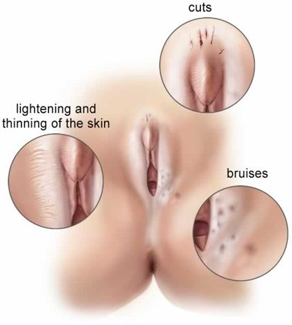 Men eating cum from womens asses